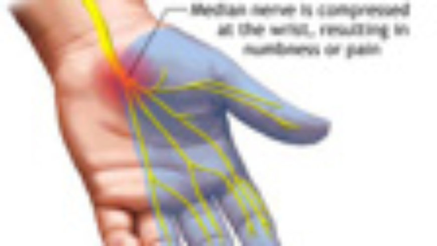 Carpal Tunnel Syndrome in the Workplace